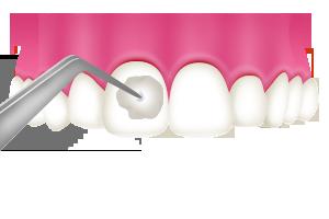 歯科医院で行うフッ素塗布