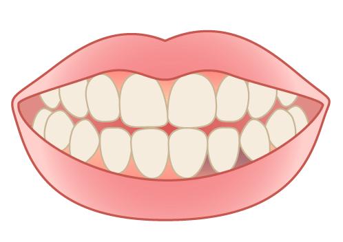 かぶせ物の金属による歯茎の黒ずみ「ブラックマージン」「メタルタトゥー」