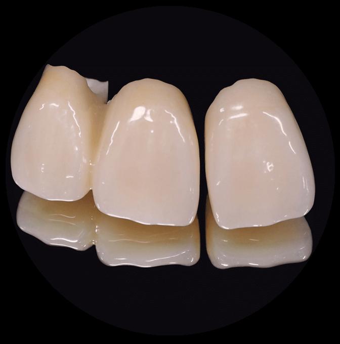 なぜセラミックは虫歯にならないのか