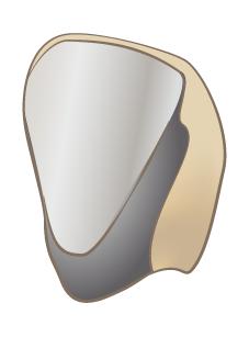 保険の白い差し歯の場合