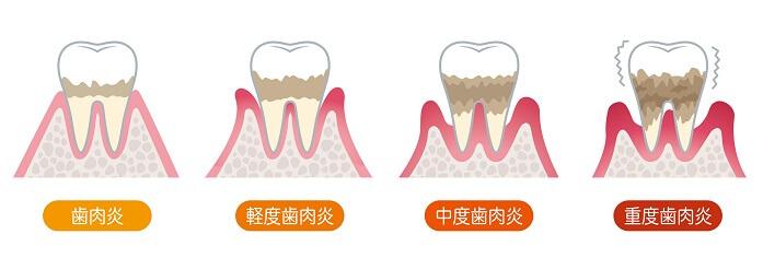 歯周病は自然に治る?放置するとどうなる?