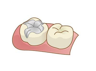 あなたのお口の中の銀歯、アマルガムかも!?